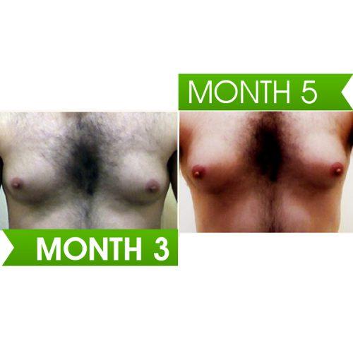 Curves - Male Breast Enlargement
